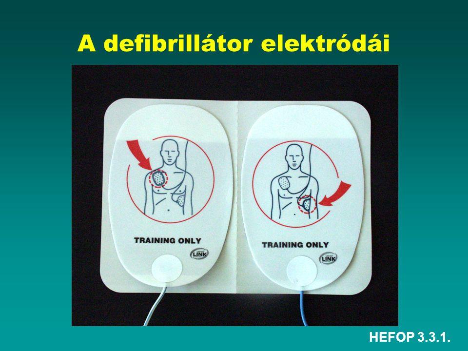 HEFOP 3.3.1. A defibrillátor elektródái