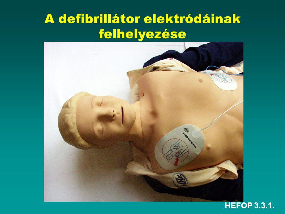HEFOP 3.3.1. A defibrillátor elektródáinak felhelyezése