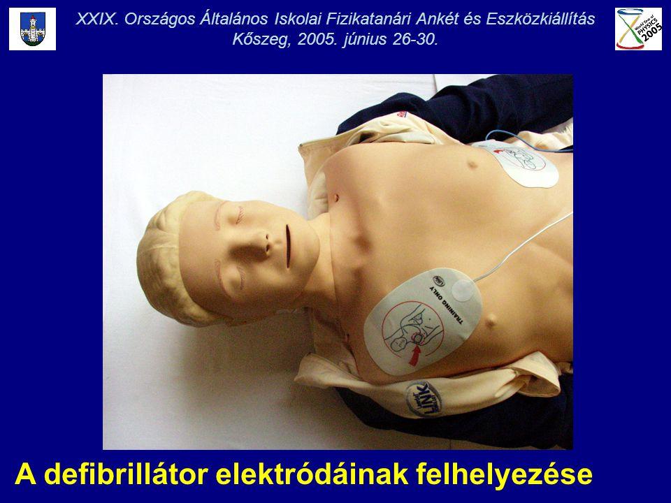A defibrillátor elektródáinak felhelyezése XXIX. Országos Általános Iskolai Fizikatanári Ankét és Eszközkiállítás Kőszeg, 2005. június 26-30.