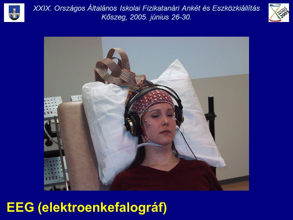 EEG (elektroenkefalográf) XXIX. Országos Általános Iskolai Fizikatanári Ankét és Eszközkiállítás Kőszeg, 2005. június 26-30.