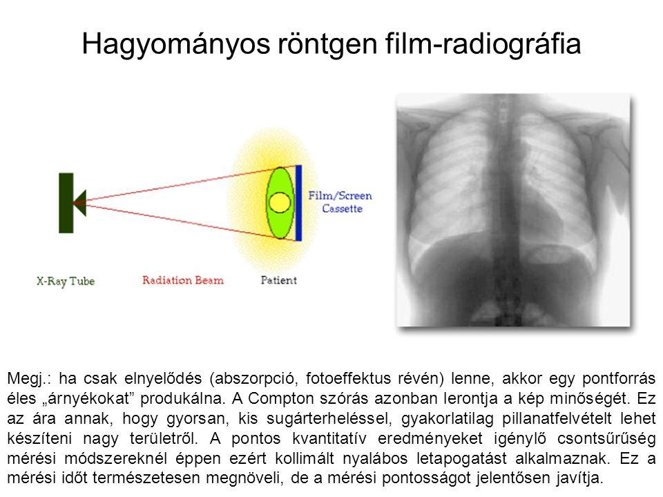 """Hagyományos röntgen film-radiográfia Megj.: ha csak elnyelődés (abszorpció, fotoeffektus révén) lenne, akkor egy pontforrás éles """"árnyékokat"""" produkál"""