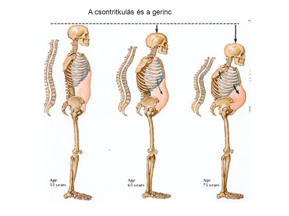 A csontritkulás és a gerinc