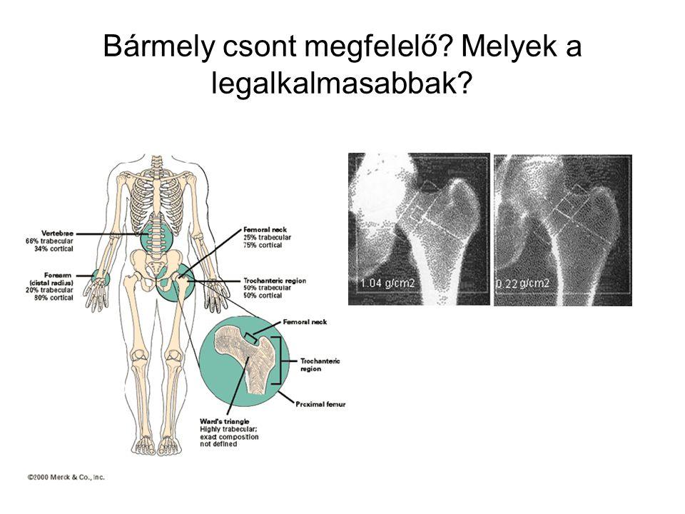 Bármely csont megfelelő? Melyek a legalkalmasabbak?
