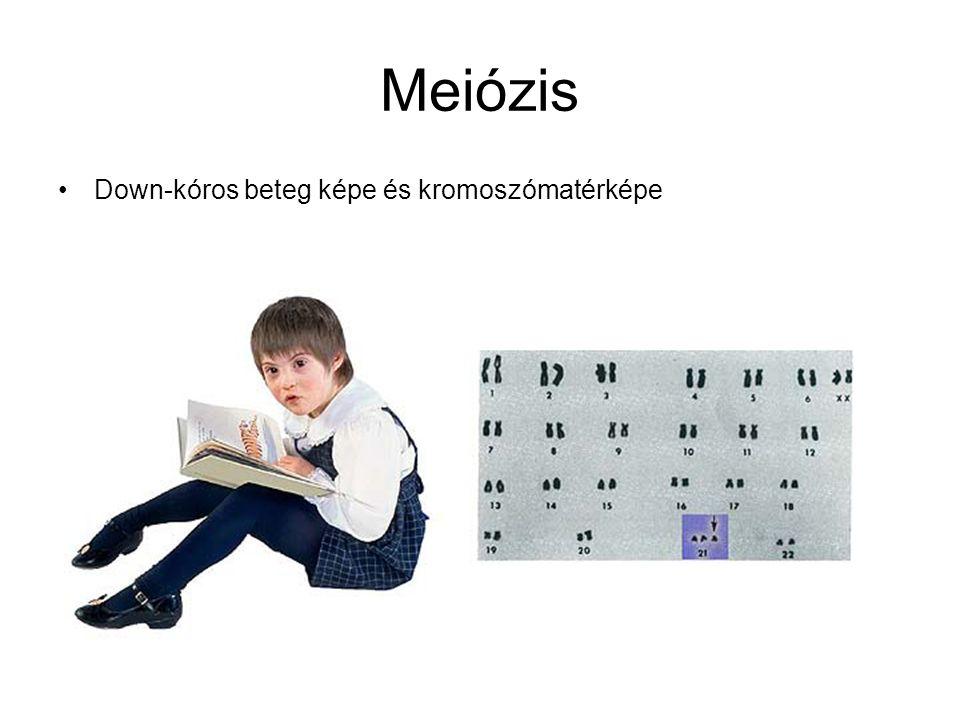Meiózis •Down-kóros beteg képe és kromoszómatérképe