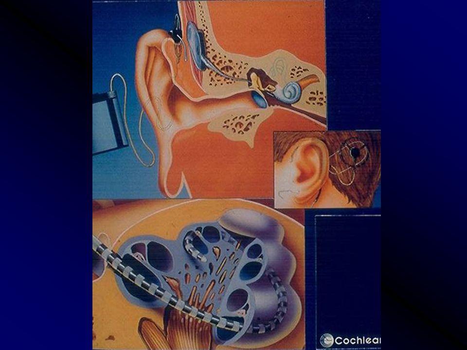 Mikor hallókészülék, mikor cochlearis implantatio, mikor agytörzsi implantatio