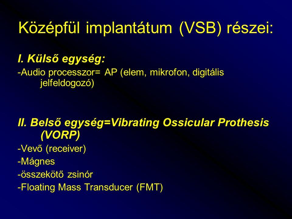 I.Külső egység: -Audio processzor= AP (elem, mikrofon, digitális jelfeldogozó) II.