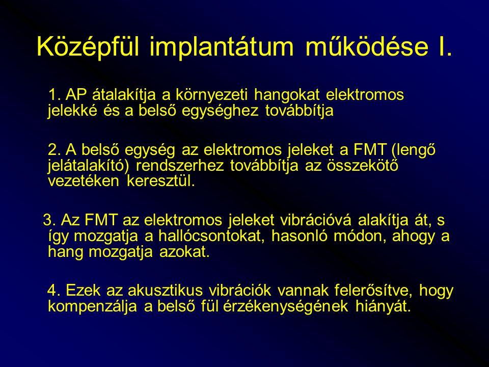Középfül implantátum működése I.1.