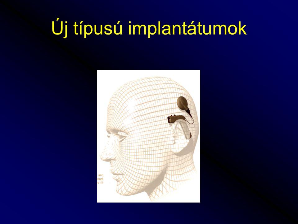 A hallókészülék típusai •Dobozos hallókészülékek •Fül mögötti készülékek •Szemüvegszárba építhető készülékek •Fülbe helyezhető készülékek •Hallójárati készülékek •Sebészileg implantált készülékek: csonthoz horgonyzott készülékek: BAHA középfülbe implantálható készülékek