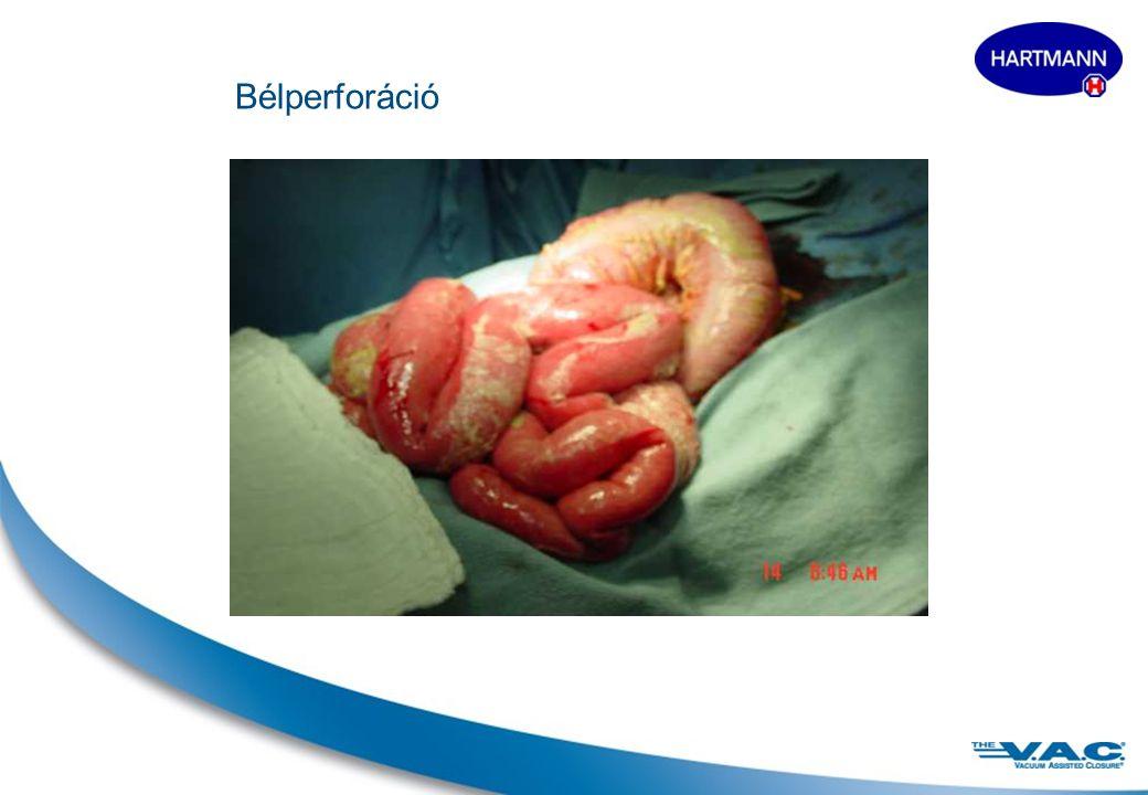 10 Szubkután szövetvesztés és izomelhalás Extra méretű V.A.C. Granu- Foam® kötszer alkalmazása Granulációs szövet képződés a 3. héten A sérülést szaba