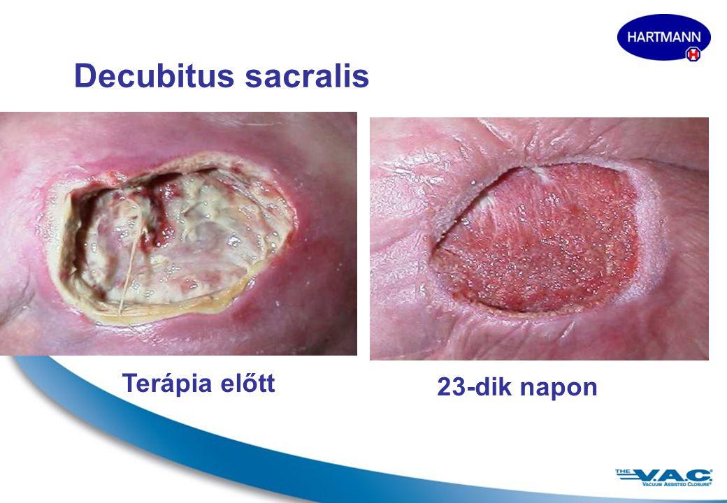 16 Terápia előtt2 nap múlva Decubitus sacralis