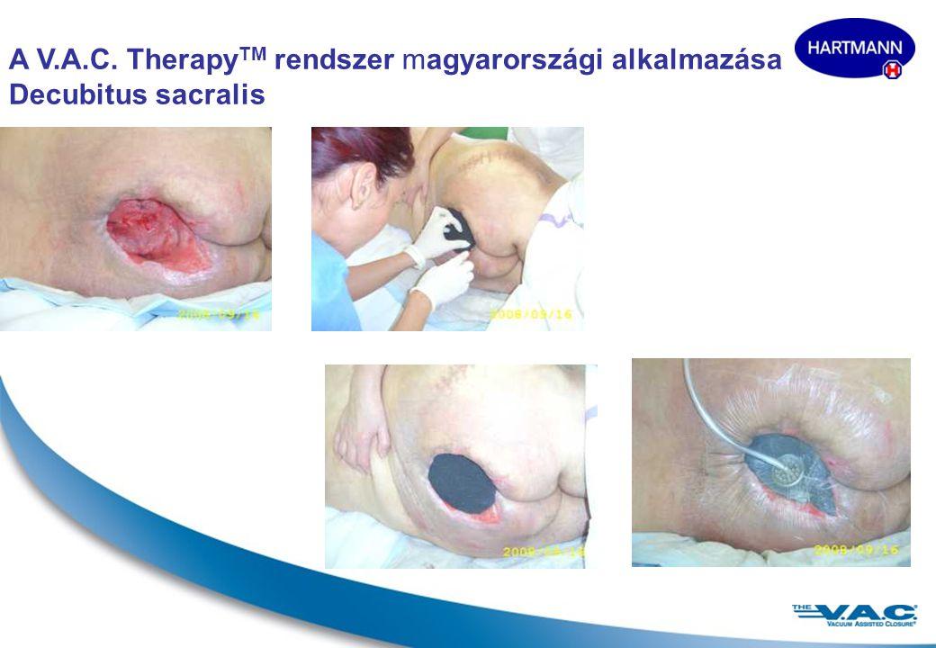 17 Decubitus sacralis Terápia előtt 23-dik napon