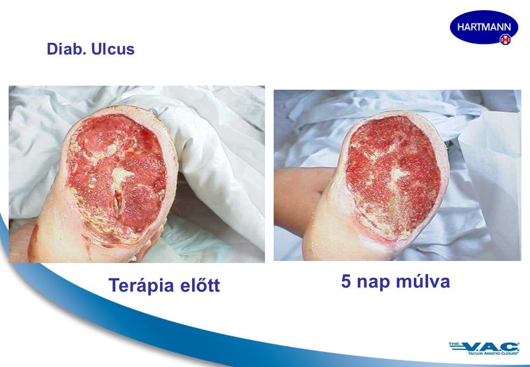 19 Ulcus cruris Terápia előtt5 nap múlva