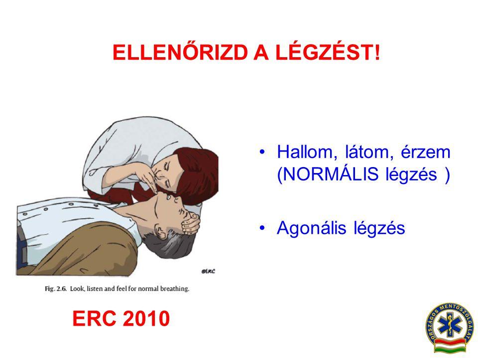 ELLENŐRIZD A LÉGZÉST! •Hallom, látom, érzem (NORMÁLIS légzés ) •Agonális légzés ERC 2010