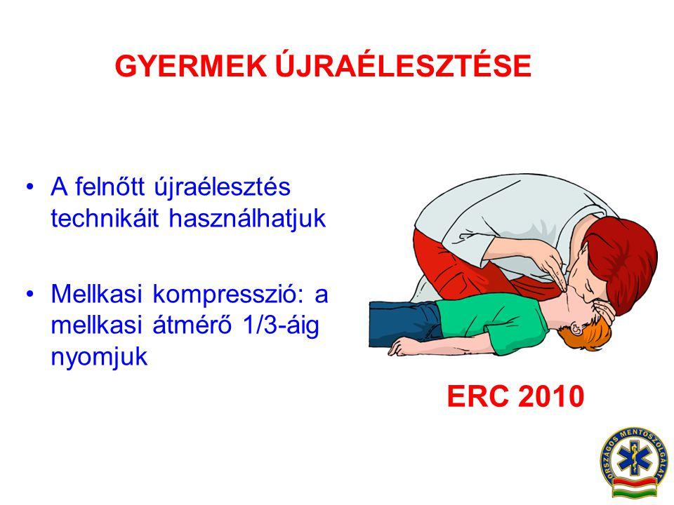 GYERMEK ÚJRAÉLESZTÉSE •A felnőtt újraélesztés technikáit használhatjuk •Mellkasi kompresszió: a mellkasi átmérő 1/3-áig nyomjuk ERC 2010