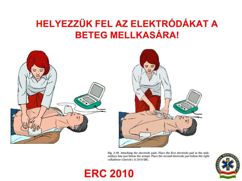 HELYEZZÜK FEL AZ ELEKTRÓDÁKAT A BETEG MELLKASÁRA! ERC 2010