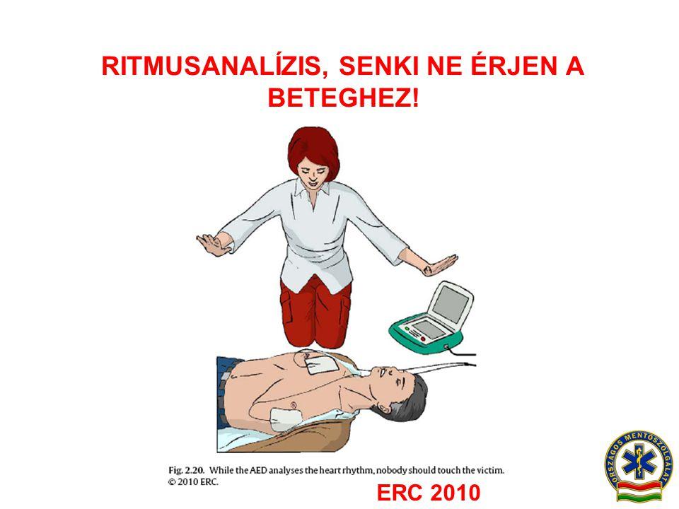 RITMUSANALÍZIS, SENKI NE ÉRJEN A BETEGHEZ! ERC 2010