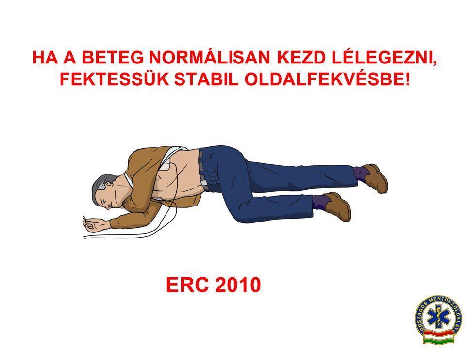 HA A BETEG NORMÁLISAN KEZD LÉLEGEZNI, FEKTESSÜK STABIL OLDALFEKVÉSBE! ERC 2010