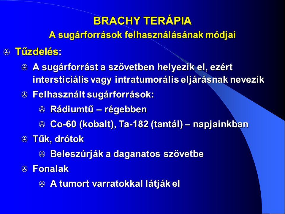 BRACHY TERÁPIA  Tűzdelés:  A sugárforrást a szövetben helyezik el, ezért intersticiális vagy intratumorális eljárásnak nevezik  Felhasznált sugárfo