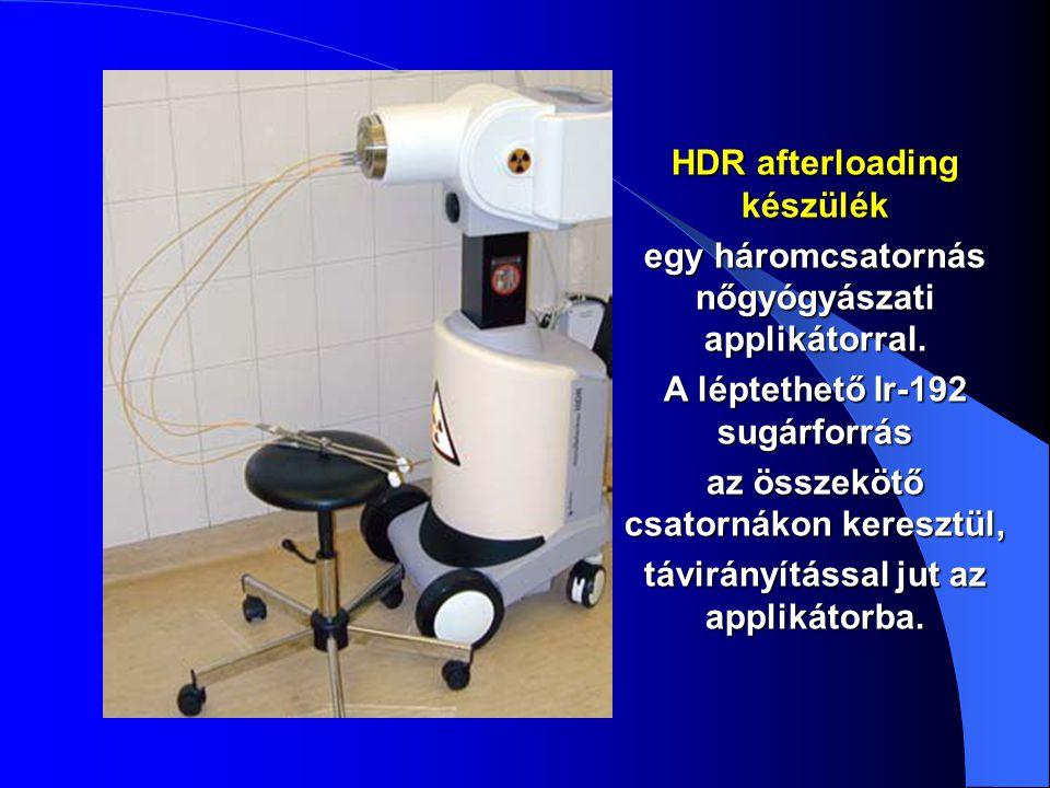 HDR afterloading készülék egy háromcsatornás nőgyógyászati applikátorral. A léptethető Ir-192 sugárforrás az összekötő csatornákon keresztül, távirány