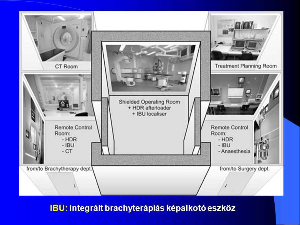IBU: integrált brachyterápiás képalkotó eszköz
