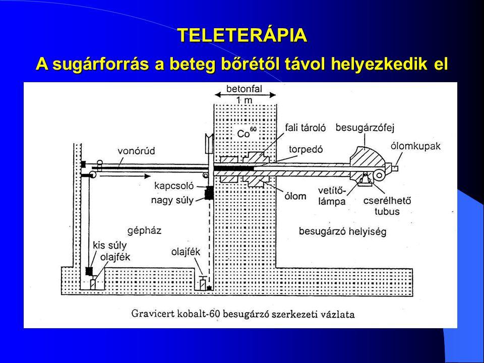 TELETERÁPIA A sugárforrás a beteg bőrétől távol helyezkedik el