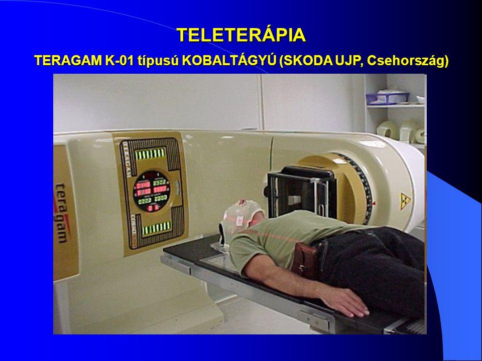 TELETERÁPIA TERAGAM K-01 típusú KOBALTÁGYÚ (SKODA UJP, Csehország)