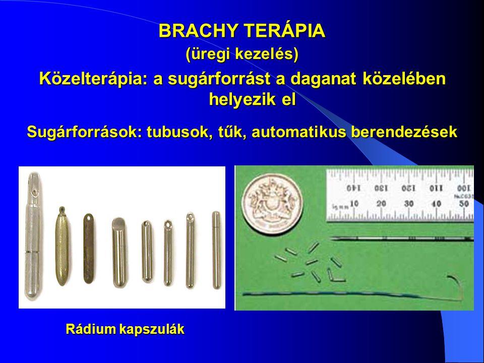 BRACHY TERÁPIA Közelterápia: a sugárforrást a daganat közelében helyezik el Sugárforrások: tubusok, tűk, automatikus berendezések Rádium kapszulák (ür