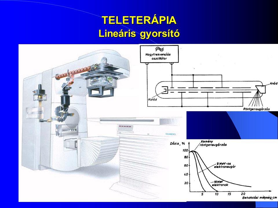 TELETERÁPIA Lineáris gyorsító