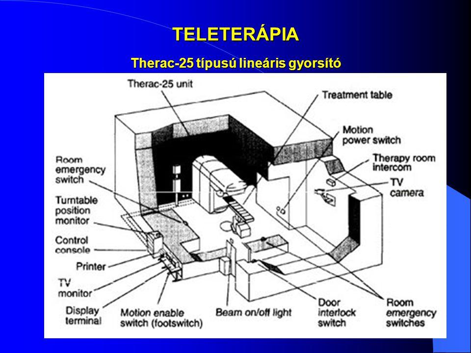 TELETERÁPIA Therac-25 típusú lineáris gyorsító