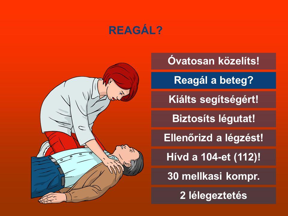 REAGÁL? Óvatosan közelíts! Reagál a beteg? Kiálts segítségért! Biztosíts légutat! Ellenőrizd a légzést! Hívd a 104-et (112)! 30 mellkasi kompr. 2 léle