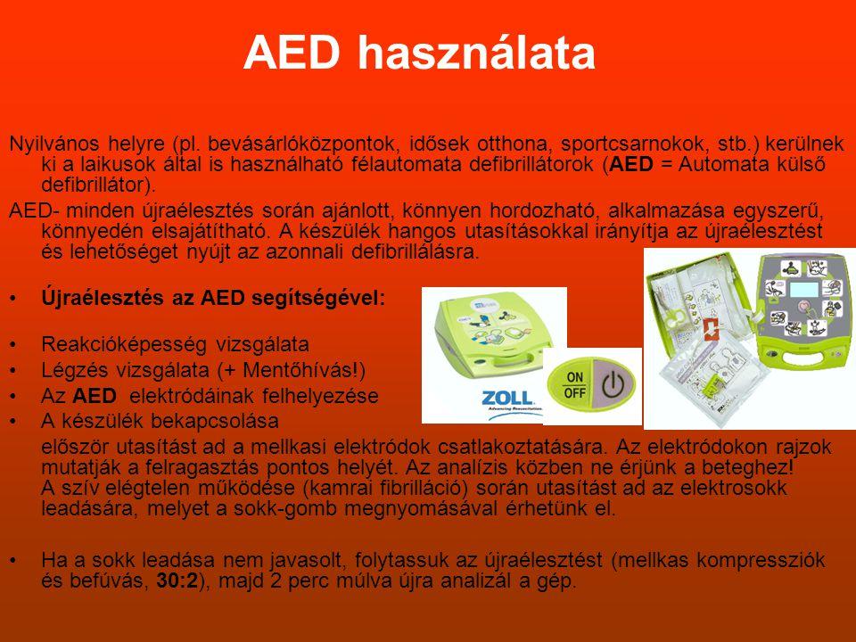 AED használata Nyilvános helyre (pl. bevásárlóközpontok, idősek otthona, sportcsarnokok, stb.) kerülnek ki a laikusok által is használható félautomata