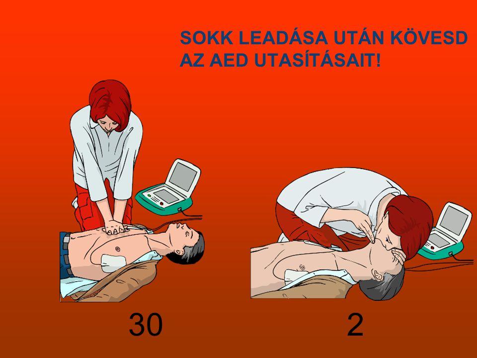 SOKK LEADÁSA UTÁN KÖVESD AZ AED UTASÍTÁSAIT! 30 2