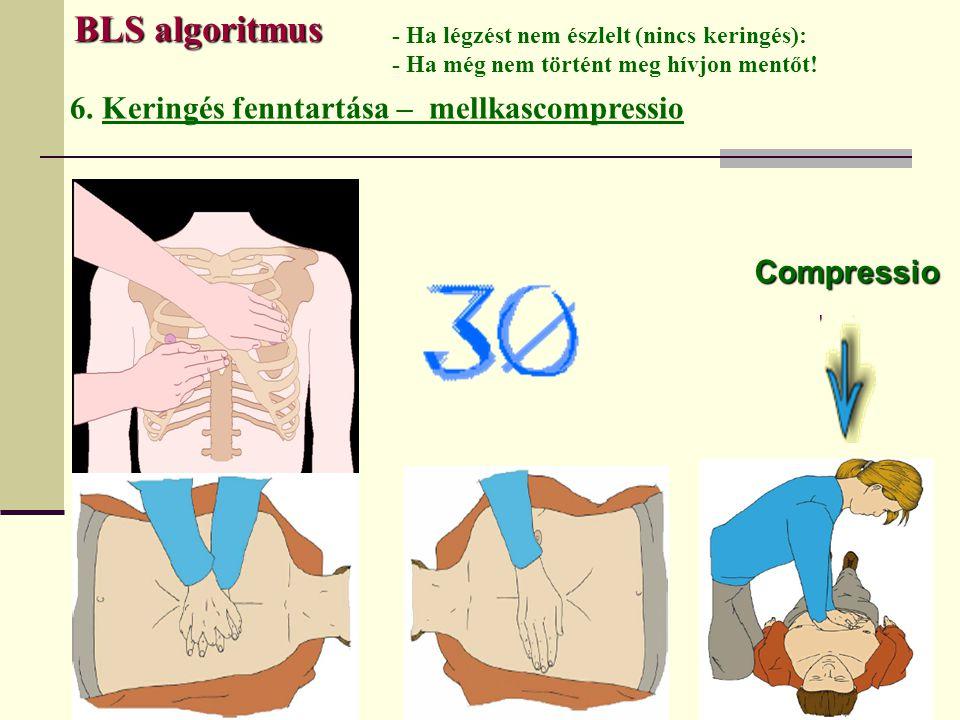 BLS algoritmus 6. Keringés fenntartása – mellkascompressio Compressio - Ha légzést nem észlelt (nincs keringés): - Ha még nem történt meg hívjon mentő