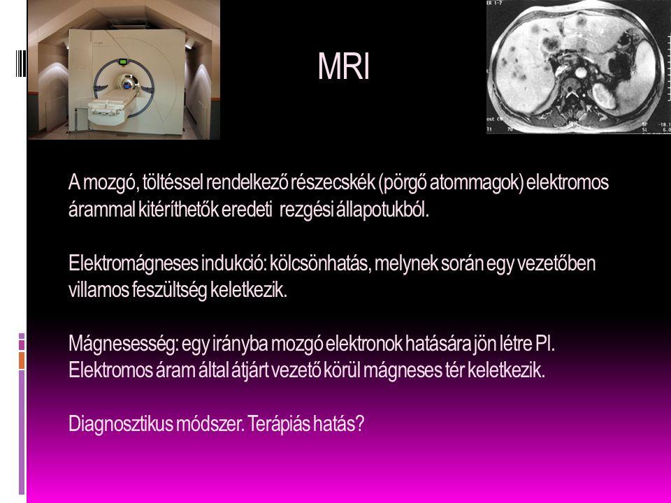 MRI A mozgó, töltéssel rendelkező részecskék (pörgő atommagok) elektromos árammal kitéríthetők eredeti rezgési állapotukból. Elektromágneses indukció: