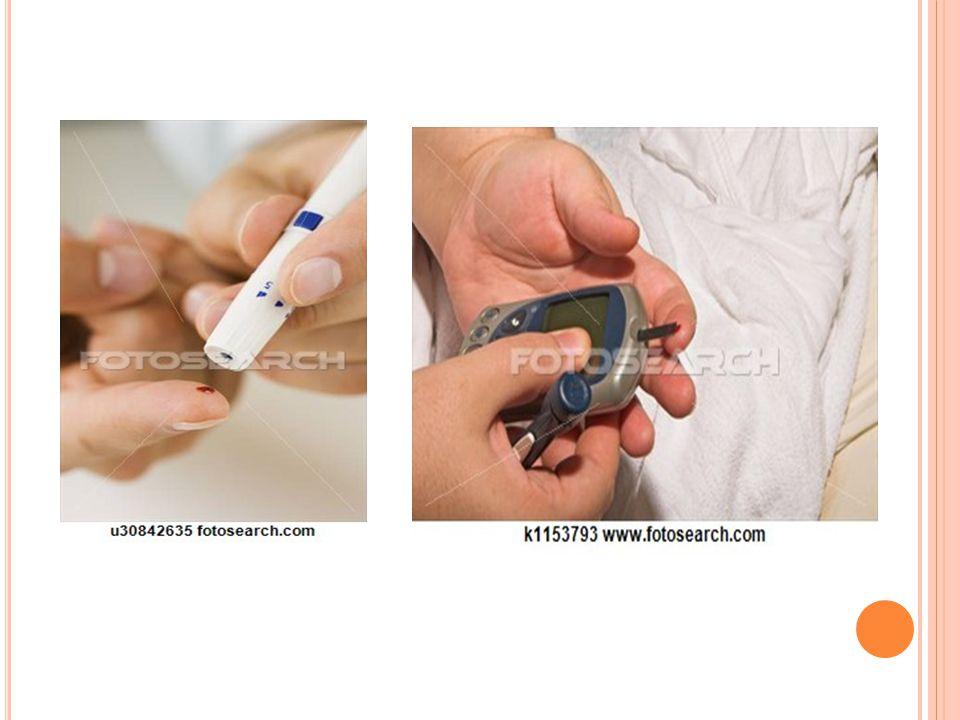 A VÉRCUKORMÉRÉS LÉPÉSEI 5.Szúrjuk meg az ujjhegyünket a lándzsával.