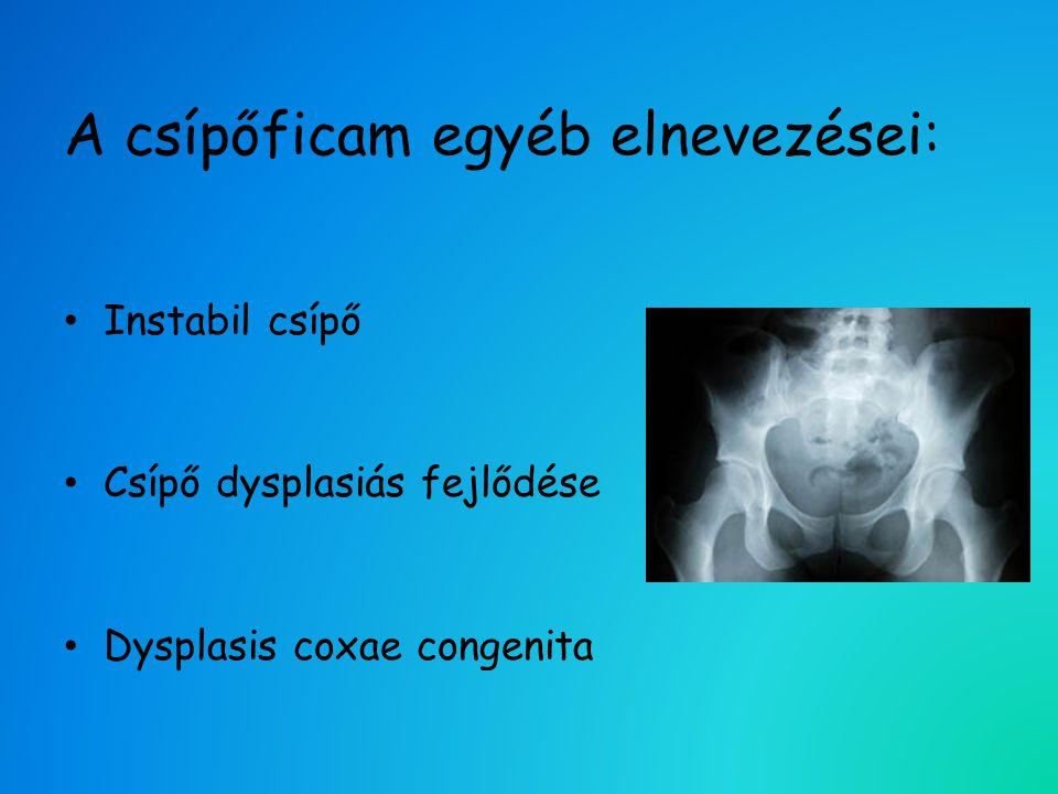 A csípőficam egyéb elnevezései: • Instabil csípő • Csípő dysplasiás fejlődése • Dysplasis coxae congenita