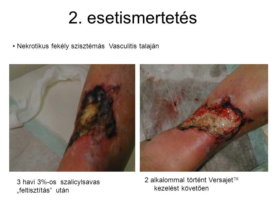 """2. esetismertetés • Nekrotikus fekély szisztémás Vasculitis talaján 3 havi 3%-os szalicylsavas """"feltisztítás"""" után 2 alkalommal történt Versajet ™ kez"""