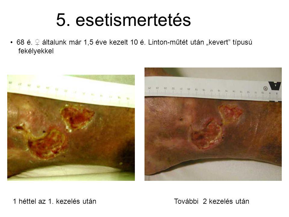 """5. esetismertetés • 68 é. ♀ általunk már 1,5 éve kezelt 10 é. Linton-műtét után """"kevert"""" típusú fekélyekkel 1 héttel az 1. kezelés után További 2 keze"""