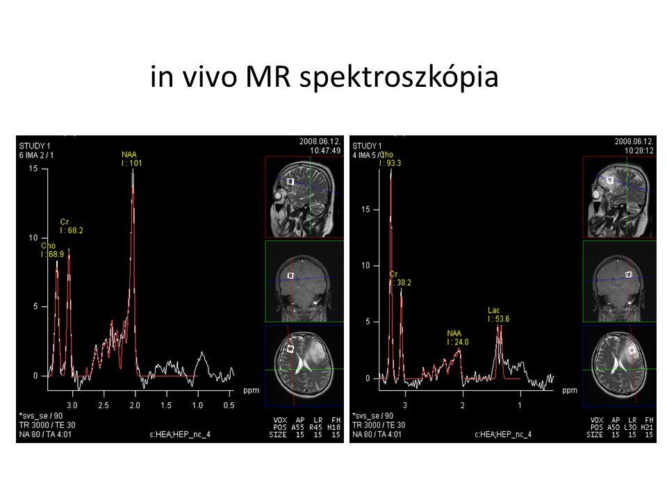 in vivo MR spektroszkópia EgészségesDaganatos