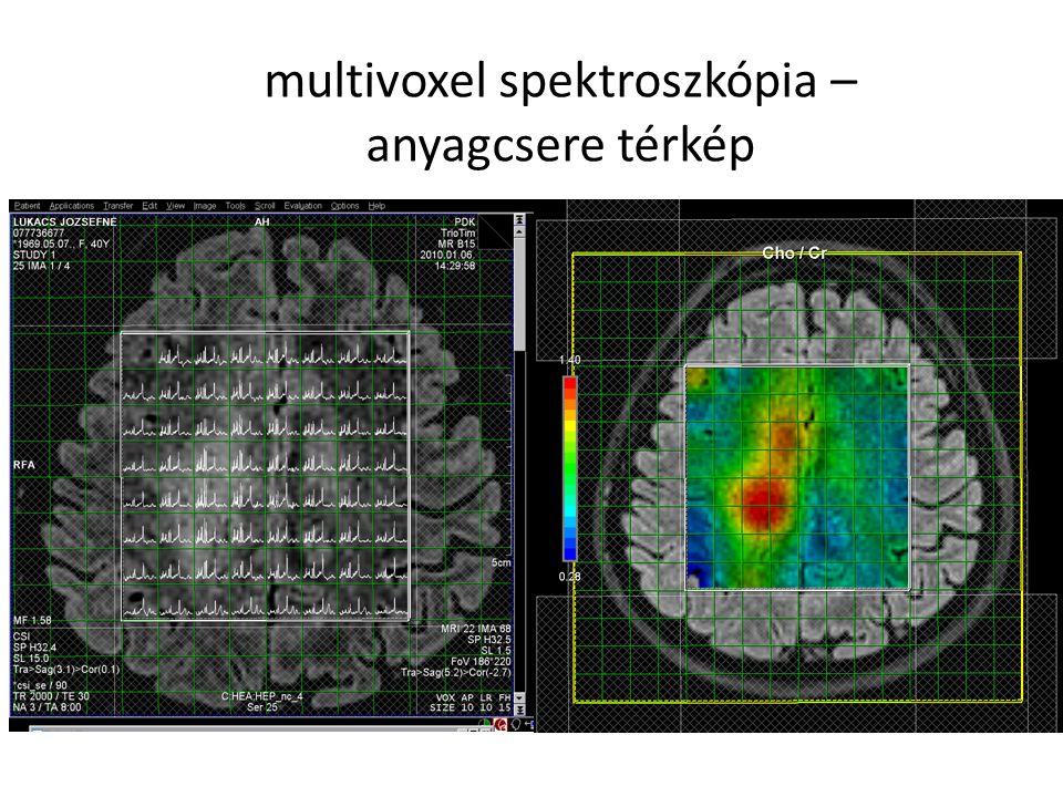 multivoxel spektroszkópia – anyagcsere térkép