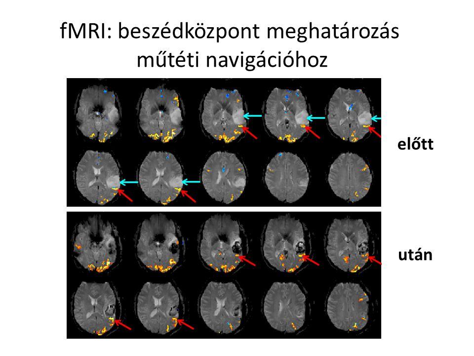 fMRI: beszédközpont meghatározás műtéti navigációhoz előtt után