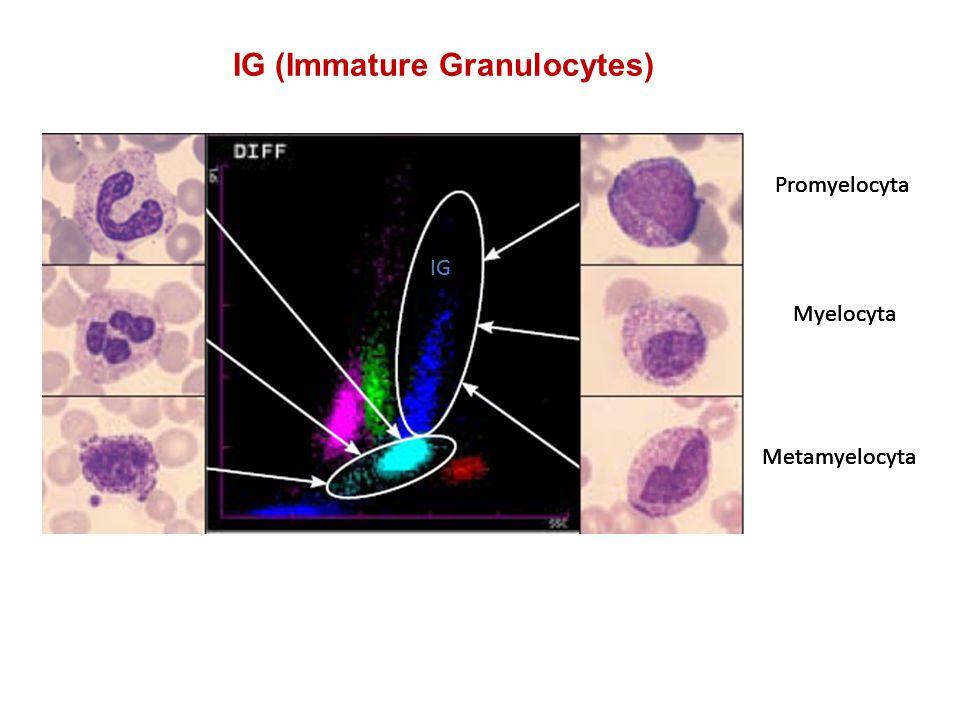 Promyelocyta Myelocyta Metamyelocyta Promyelocyta Myelocyta Metamyelocyta IG IG (Immature Granulocytes)