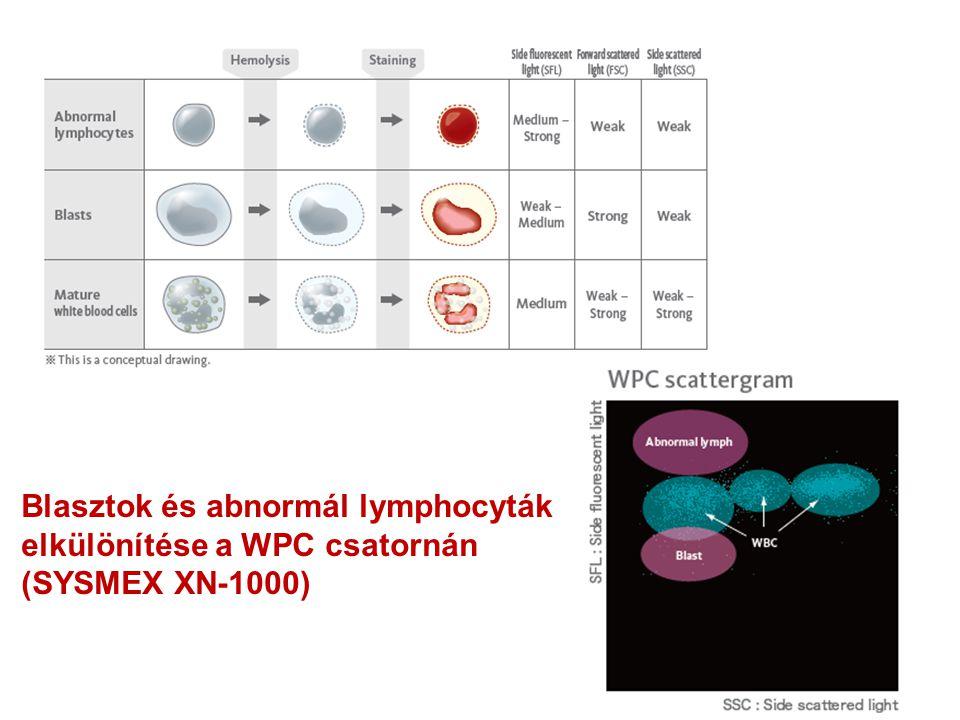 Blasztok és abnormál lymphocyták elkülönítése a WPC csatornán (SYSMEX XN-1000)