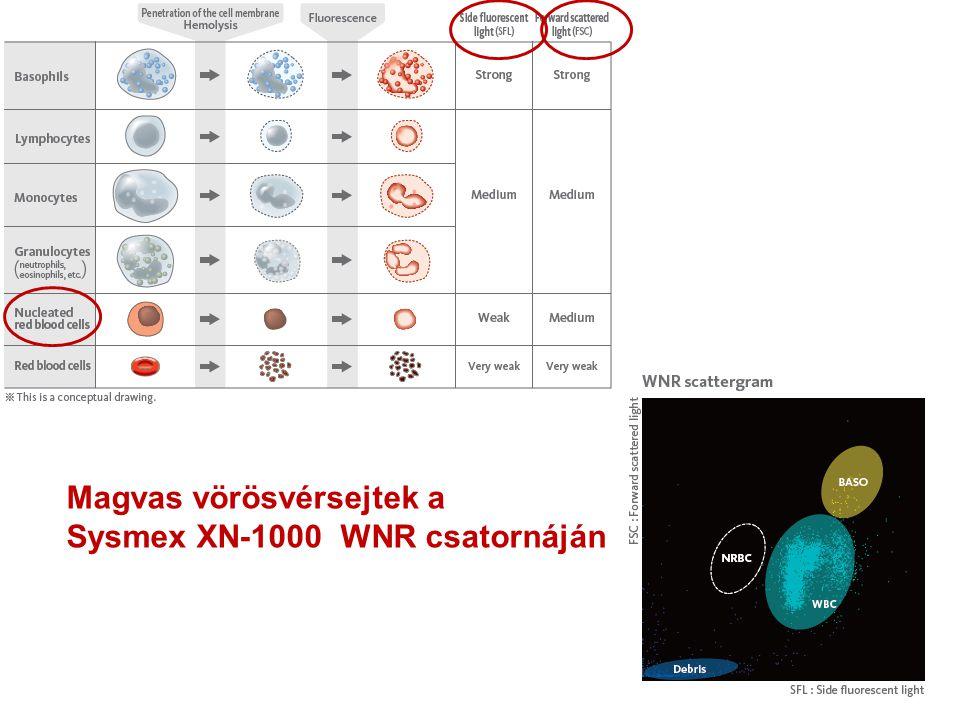 Magvas vörösvérsejtek a Sysmex XN-1000 WNR csatornáján