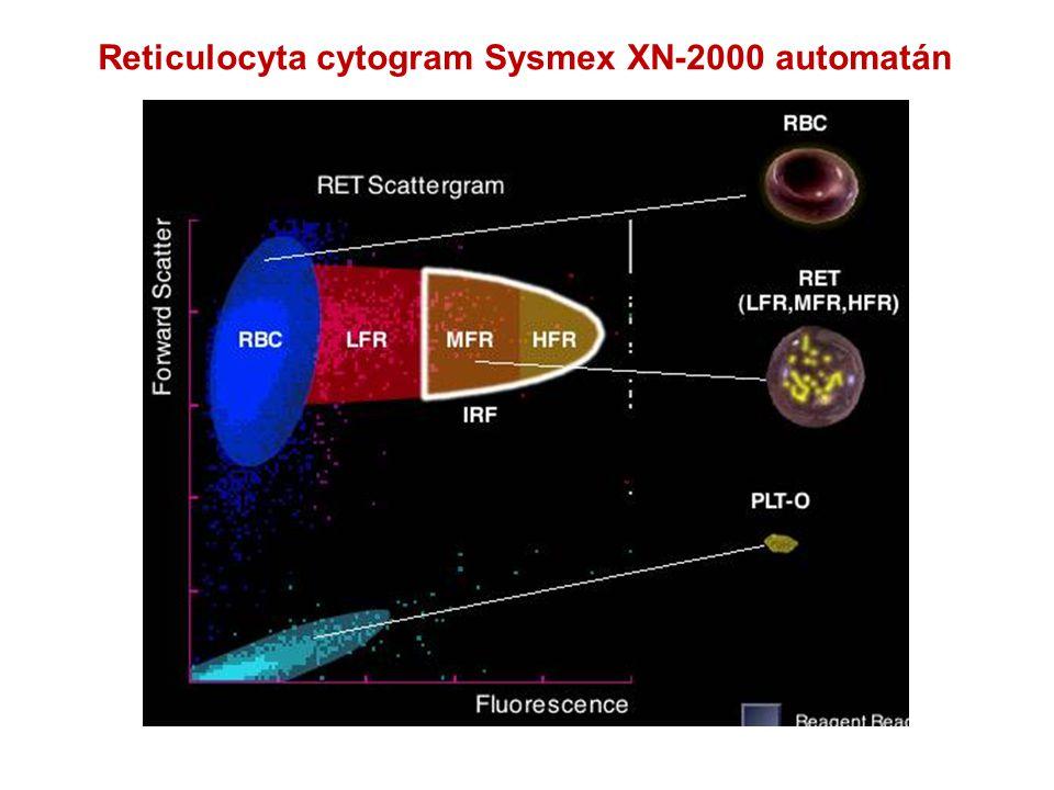Reticulocyta cytogram Sysmex XN-2000 automatán