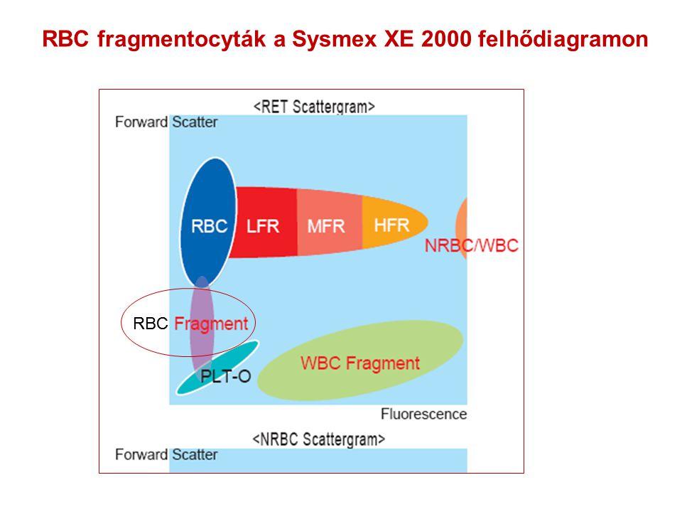 RBC fragmentocyták a Sysmex XE 2000 felhődiagramon RBC