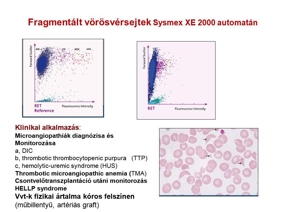 Fragmentált vörösvérsejtek Sysmex XE 2000 automatán Klinikai alkalmazás: Microangiopathiák diagnózisa és Monitorozása a, DIC b, thrombotic thrombocyto