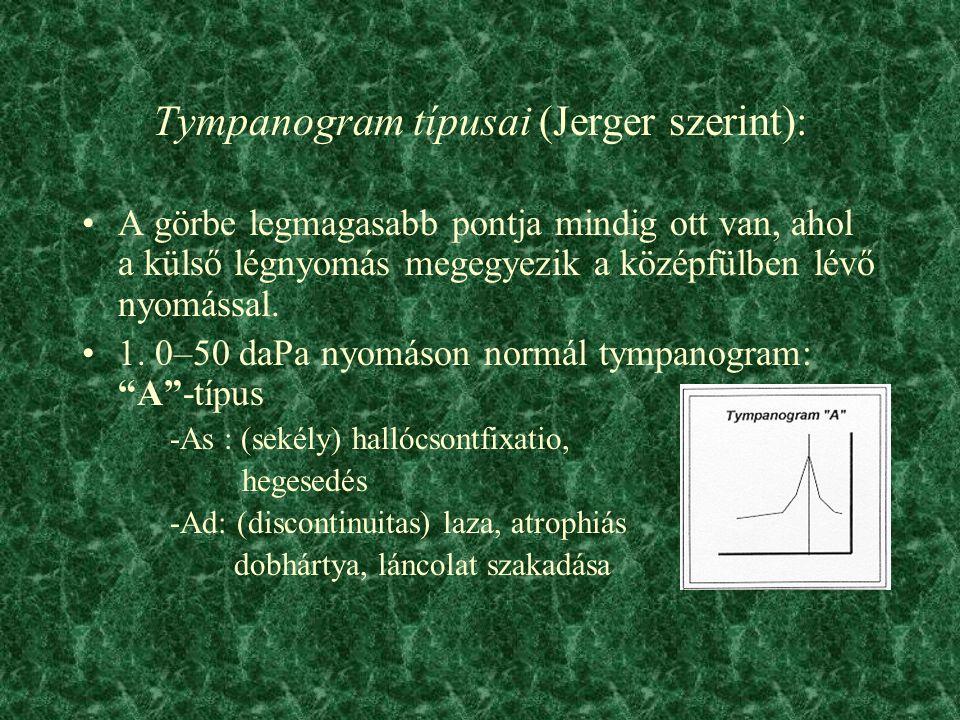 Tympanogram típusai (Jerger szerint): A görbe legmagasabb pontja mindig ott van, ahol a külső légnyomás megegyezik a középfülben lévő nyomással.