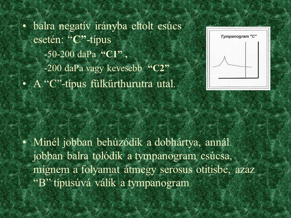 balra negatív irányba eltolt csúcs esetén: C -típus -50-200 daPa C1 , -200 daPa vagy kevesebb C2 A C -típus fülkürthurutra utal.