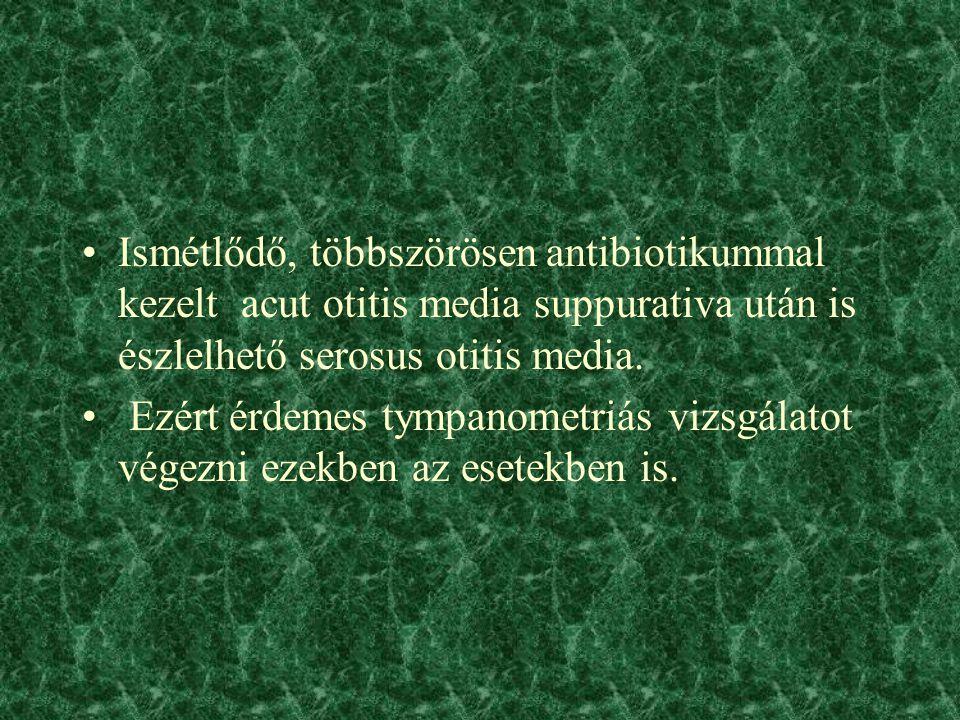 Ismétlődő, többszörösen antibiotikummal kezelt acut otitis media suppurativa után is észlelhető serosus otitis media.